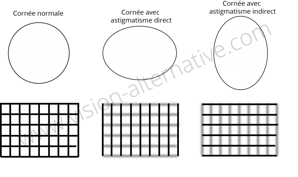 cornees-et-astigmatisme